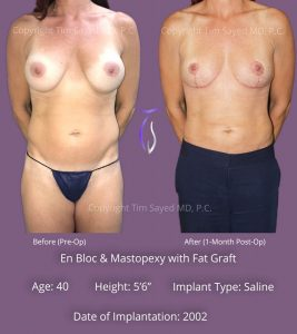 En Bloc with Mastopexy and Fat Graft Case 1