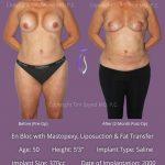En Bloc with Mastopexy, Liposution & Fat Grafting Case 1