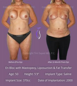 En Bloc with Mastopexy, Liposution & Fat Grafting Case 1