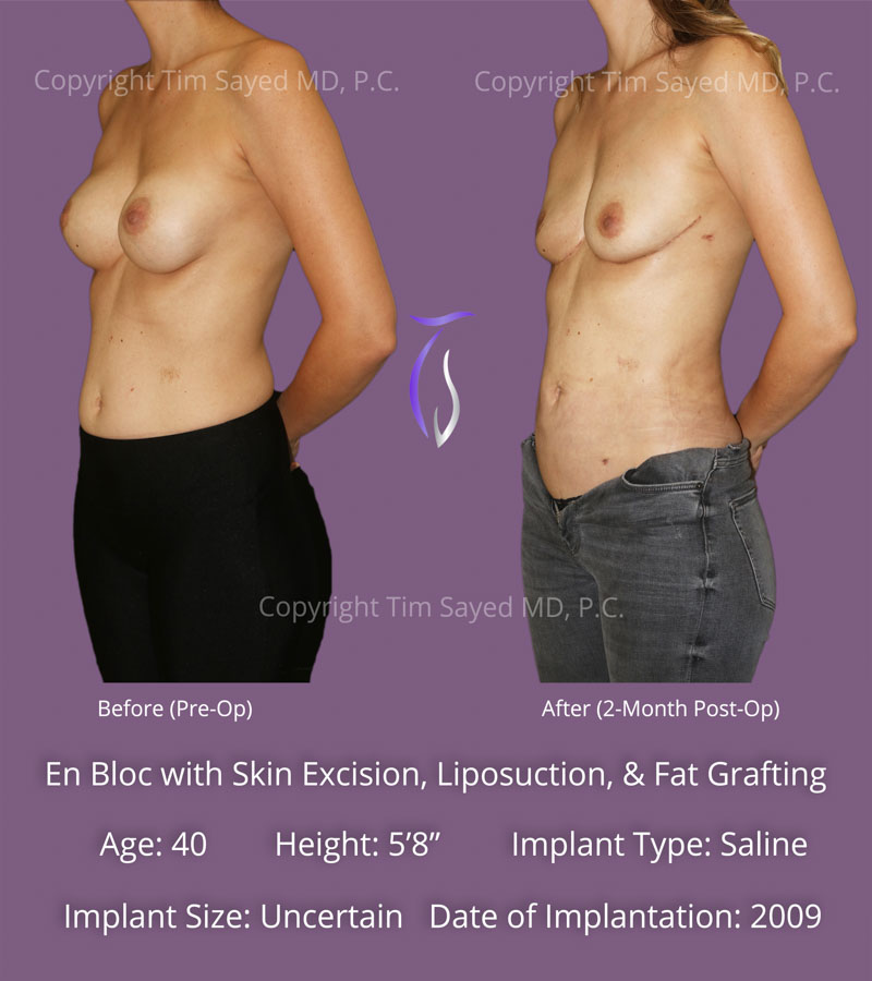 En Bloc with Skin Excision, Liposuction, and Fat Grafting Case 1