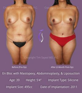 En Bloc with Mastopexy, Abdominoplasty, & Liposuction Case 1
