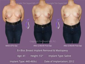 En Bloc with Mastopexy Case 10