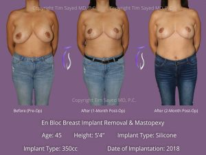 En Bloc with Mastopexy Case 12