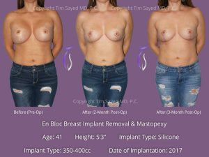 En Bloc with Mastopexy Case 13