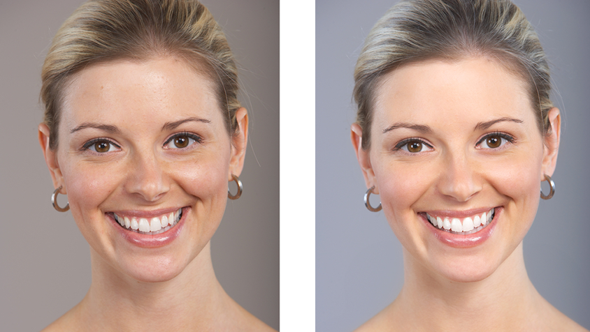 Face Procedures before and after photos