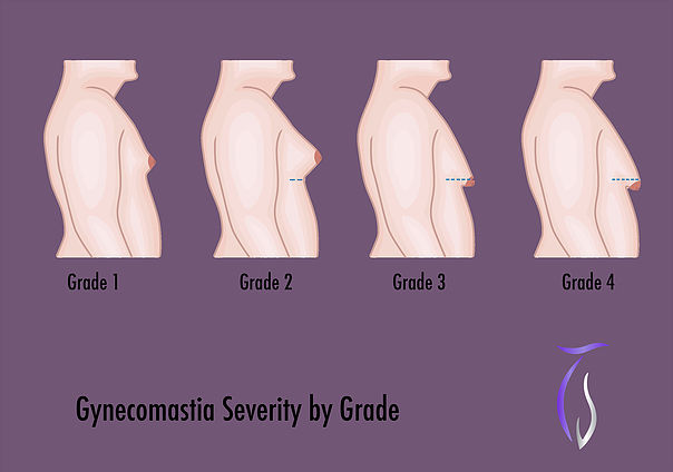 Gynecomastia severity by Grade