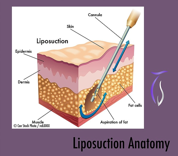 Male Liposuction Anatomy
