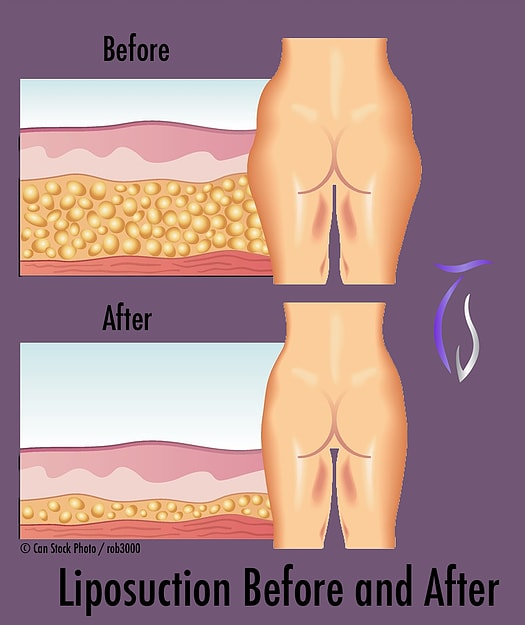 Male liposuction before and after