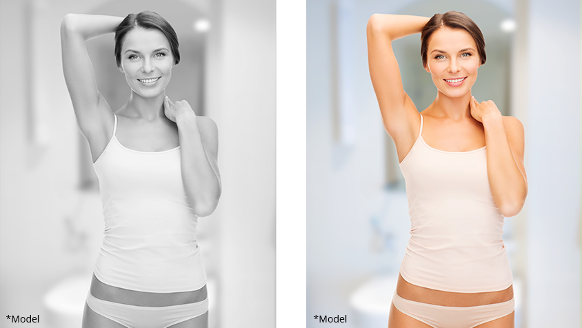 Body Procedures Before and After Photos