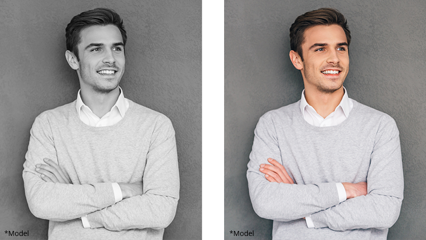 Men Procedures before and after photos