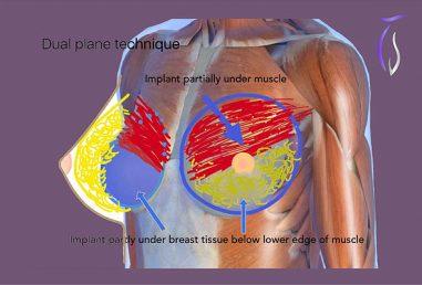 Breast augmentation dual panel technique