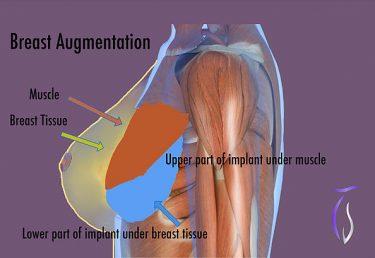 Breast augmentation subglandular technique