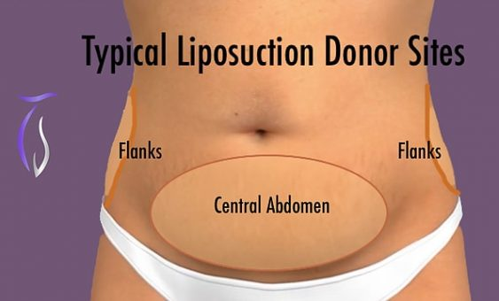 Liposuction donor sites flank, central abdomen