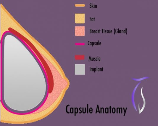 Capsule anatomy capsular contracture