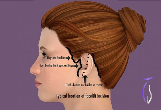 Typical location of facelift incision